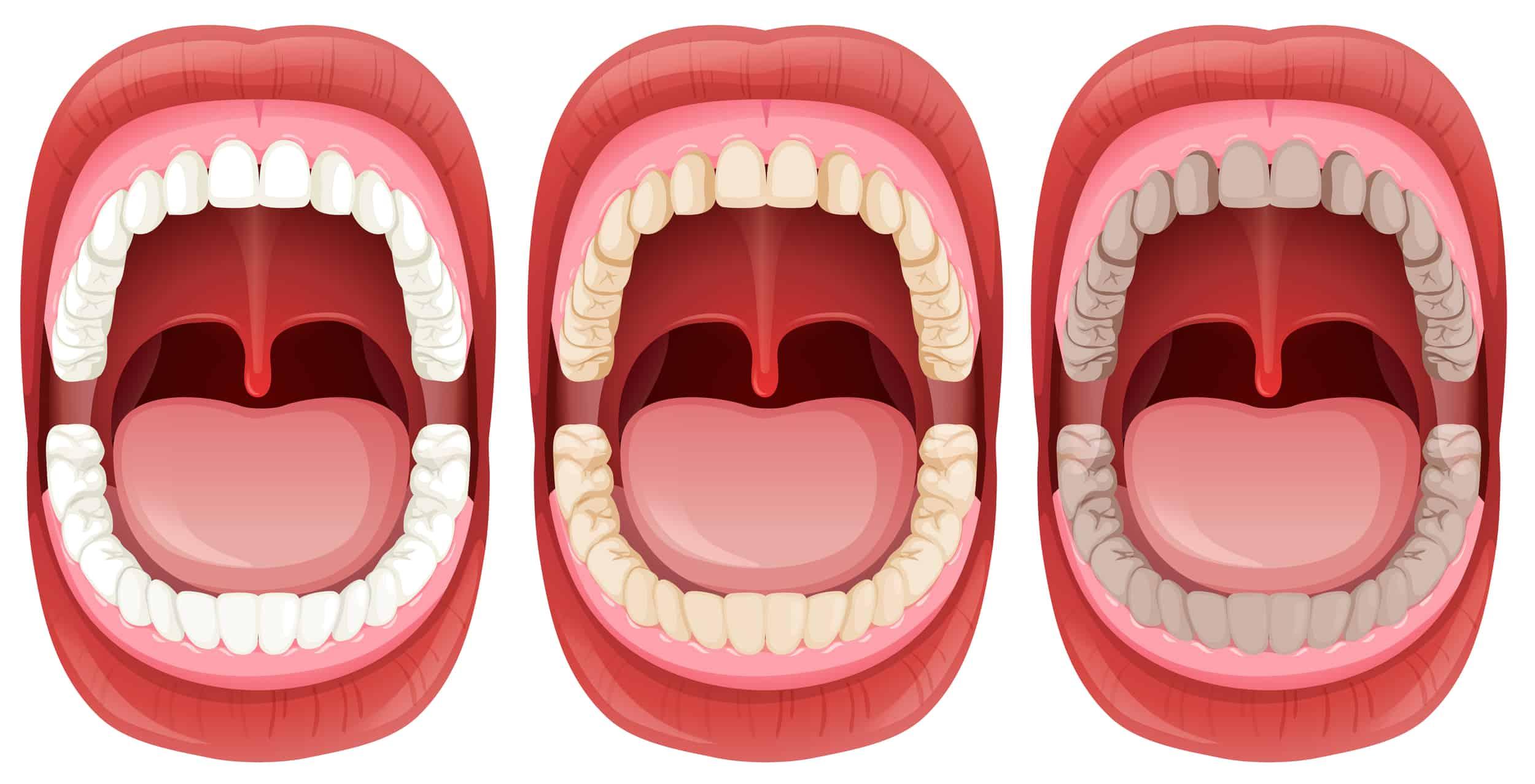 Foster Oral Hygiene