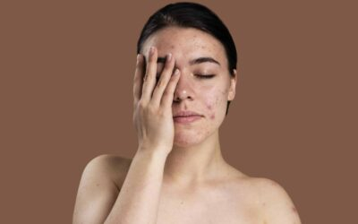 Can Dry Skin Cause Acne?
