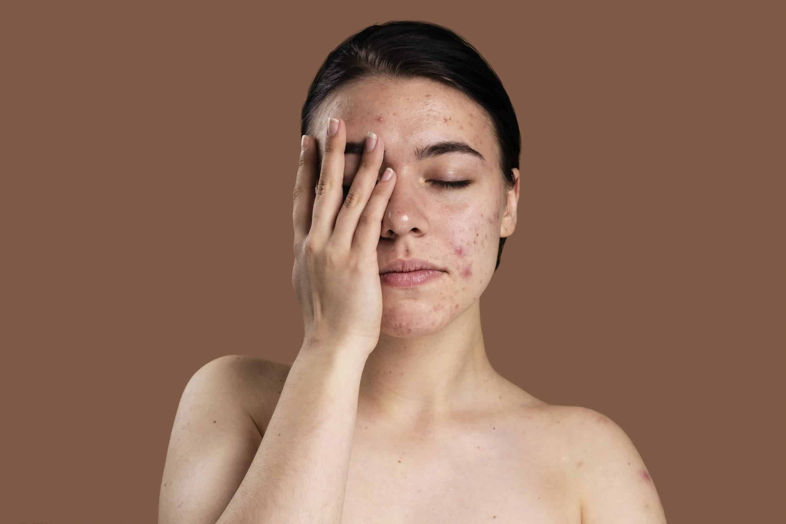 can dry skin cause acne